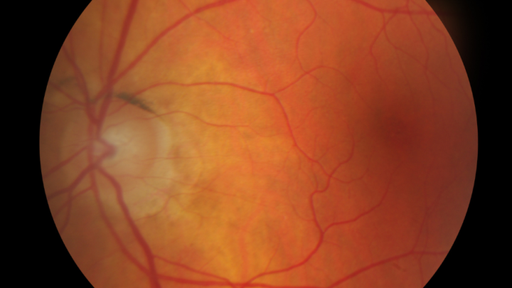 What Exactly Is a FUNDUS EXAM?