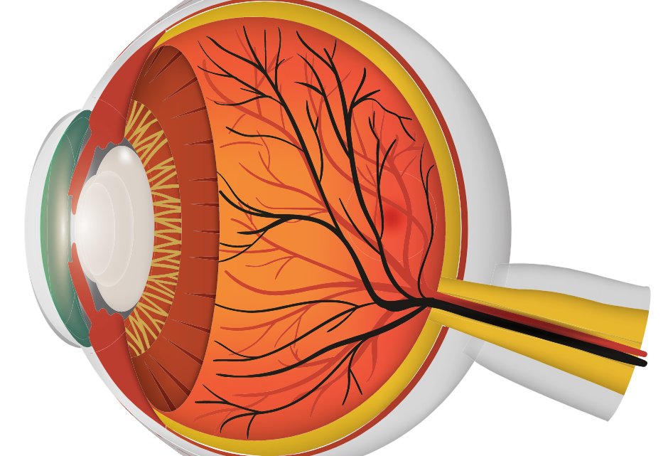 What Is Retinitis Pigmentosis & Can It Be Reversed?